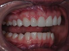 After - Birmingham Dental