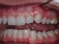 Before - Birmingham Dental